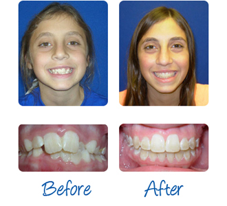 Before Amp After Braces Photos Mazzei Orthodontics
