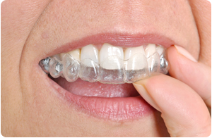 invisalign clear aligners coral springs fl