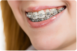 common problems when braces may be needed